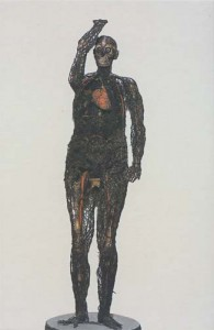 A woman that was disected and preserved in 1760, from the museum collection.