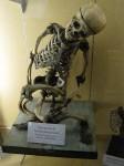 An adult with a rare bone desease