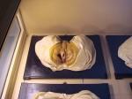 Wax model of a male anus